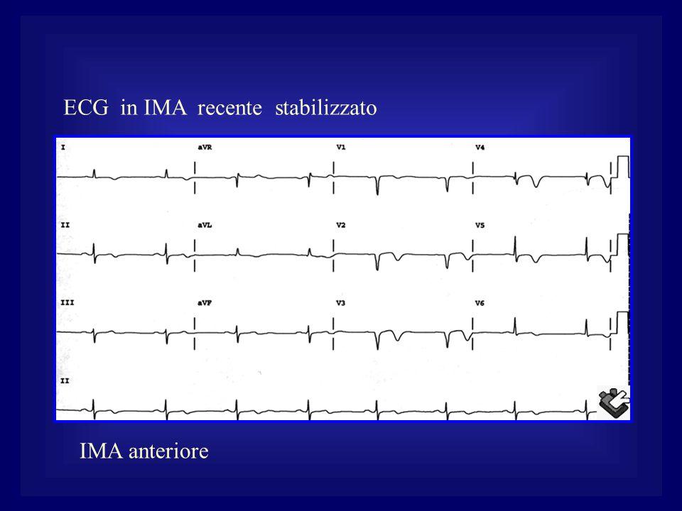 ECG in IMA recente stabilizzato IMA anteriore