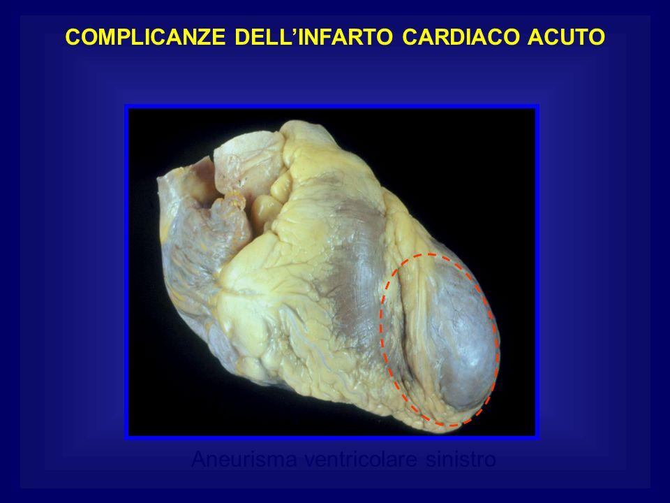 Aneurisma ventricolare sinistro