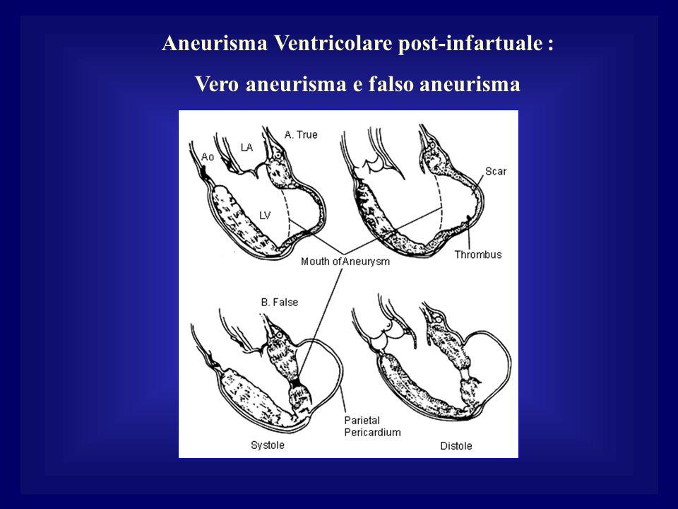 Aneurisma Ventricolare post-infartuale : Vero aneurisma e falso aneurisma