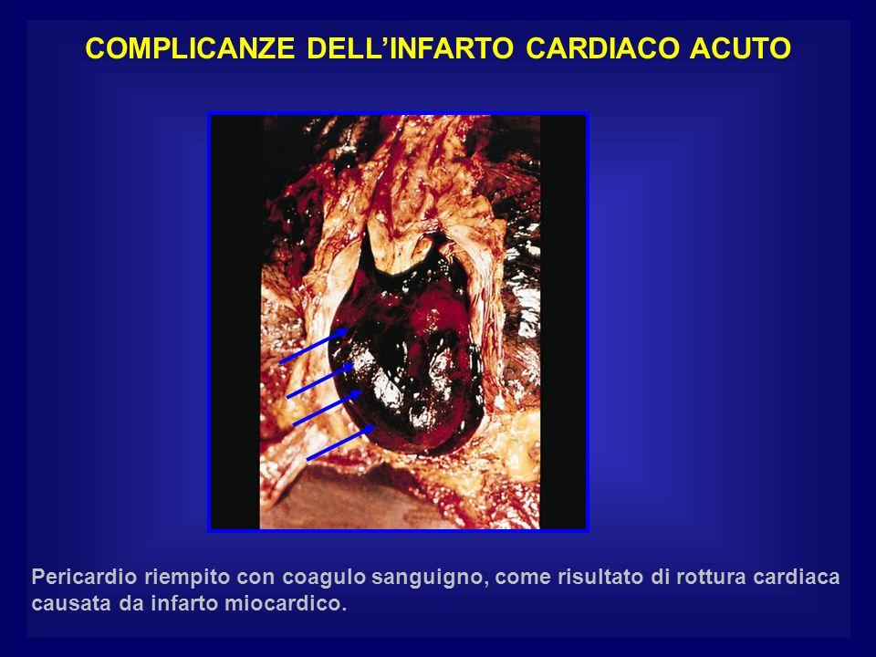 COMPLICANZE DELLINFARTO CARDIACO ACUTO Pericardio riempito con coagulo sanguigno, come risultato di rottura cardiaca causata da infarto miocardico.