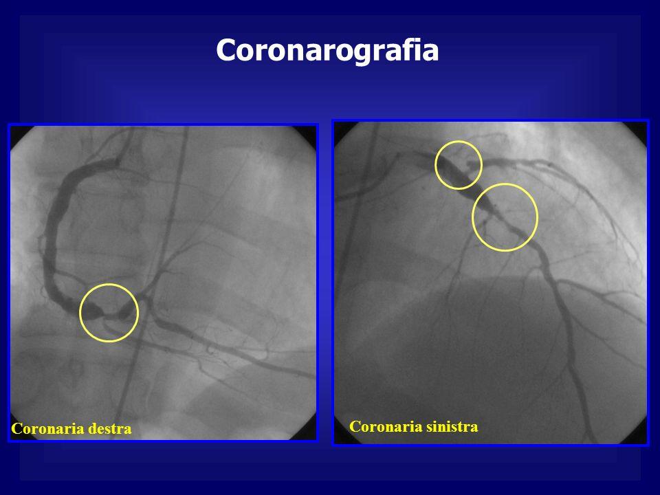 Coronarografia Coronaria destra Coronaria sinistra