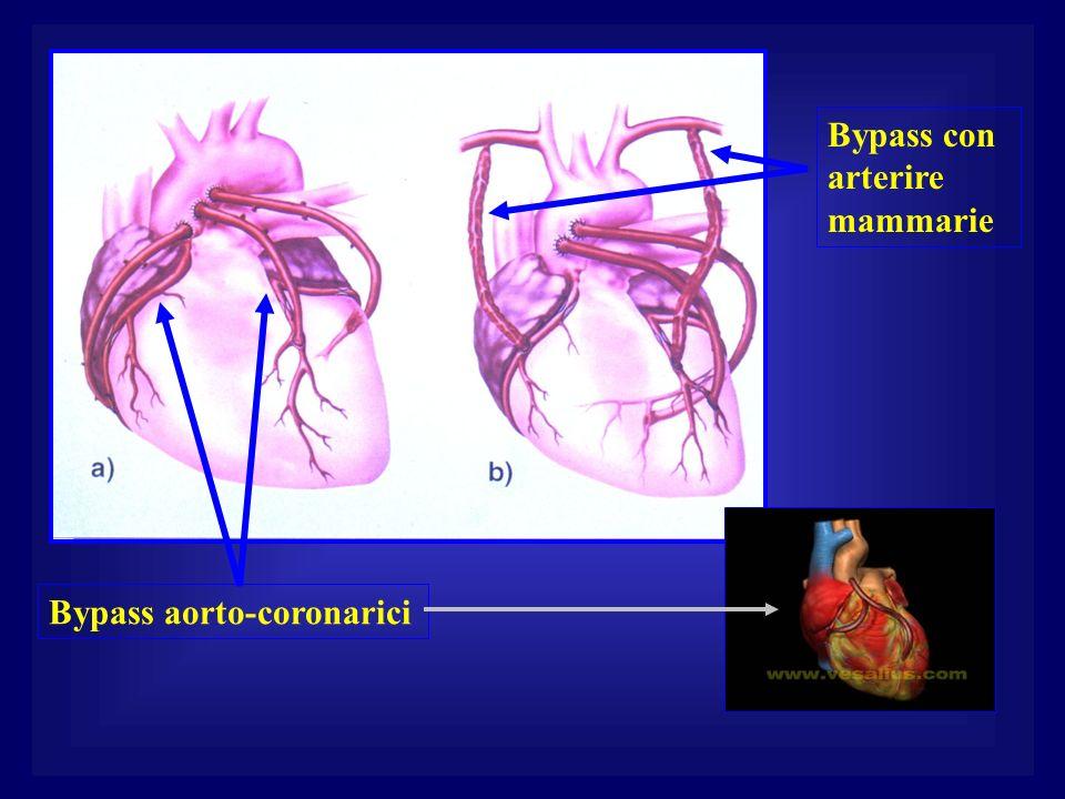 Bypass aorto-coronarici Bypass con arterire mammarie