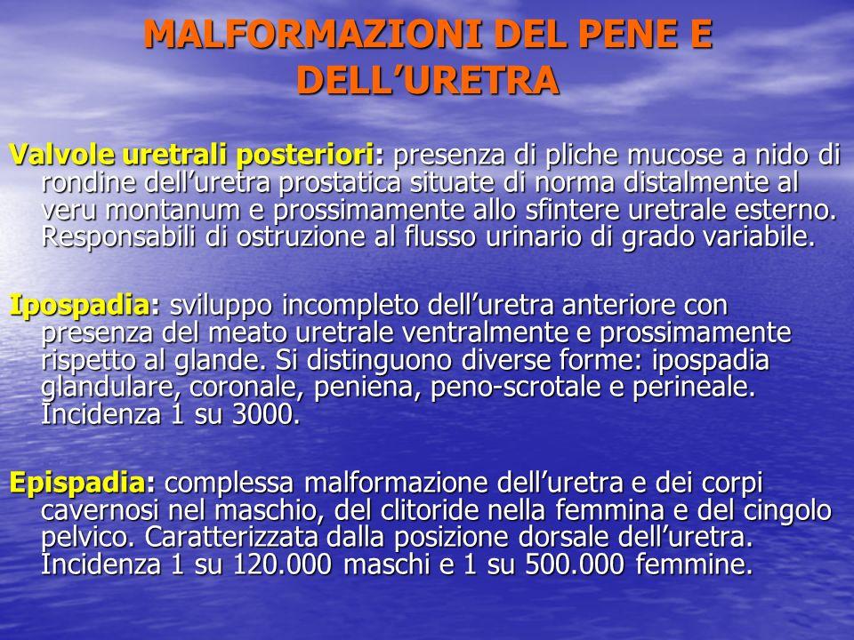Valvole uretrali posteriori: presenza di pliche mucose a nido di rondine delluretra prostatica situate di norma distalmente al veru montanum e prossim