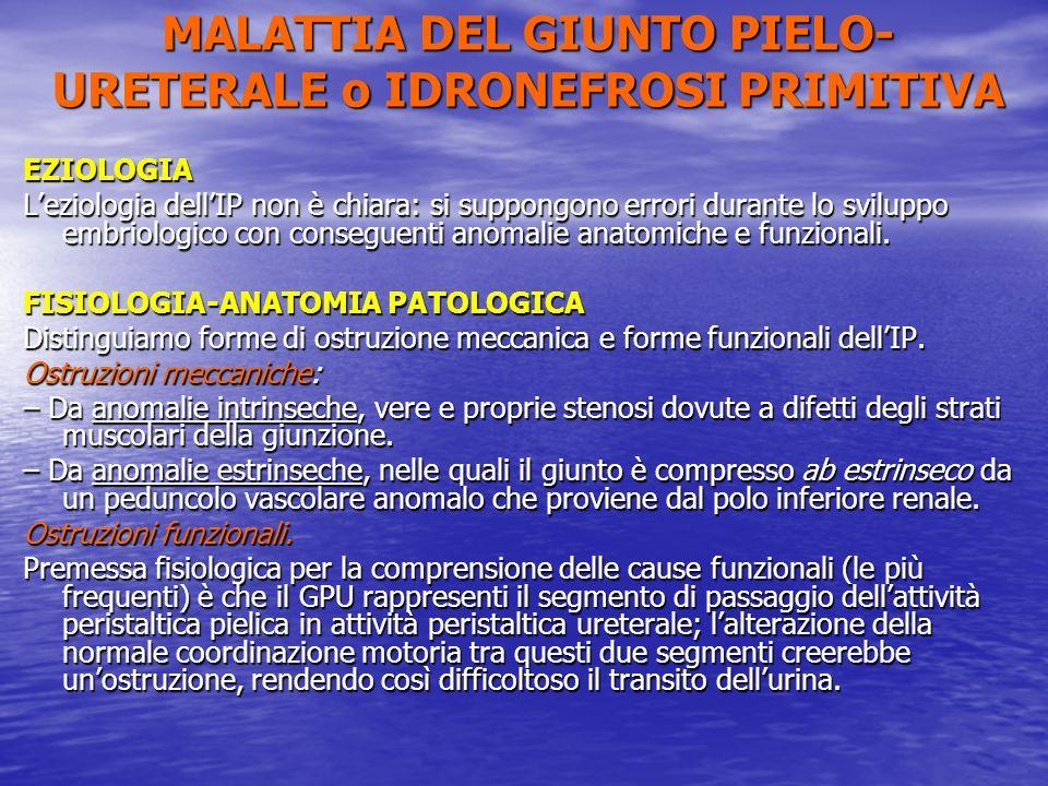 EZIOLOGIA Leziologia dellIP non è chiara: si suppongono errori durante lo sviluppo embriologico con conseguenti anomalie anatomiche e funzionali. FISI