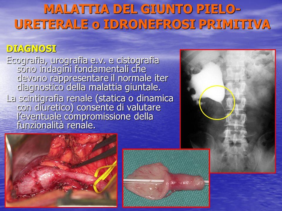 DIAGNOSI Ecografia, urografia e.v. e cistografia sono indagini fondamentali che devono rappresentare il normale iter diagnostico della malattia giunta