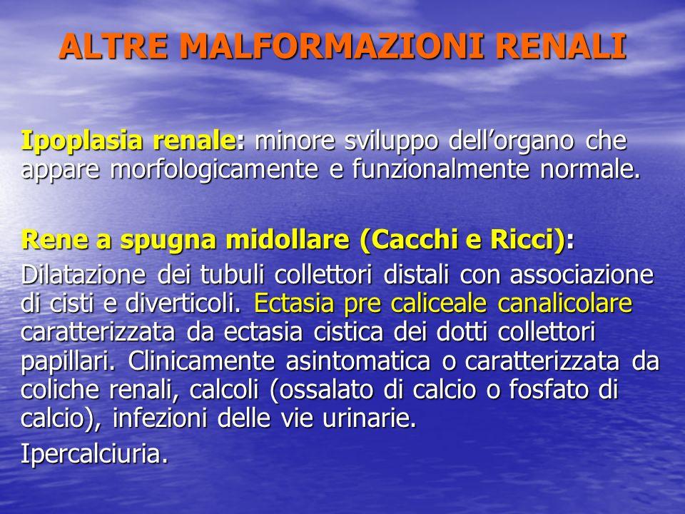 ALTRE MALFORMAZIONI RENALI Ipoplasia renale: minore sviluppo dellorgano che appare morfologicamente e funzionalmente normale. Rene a spugna midollare