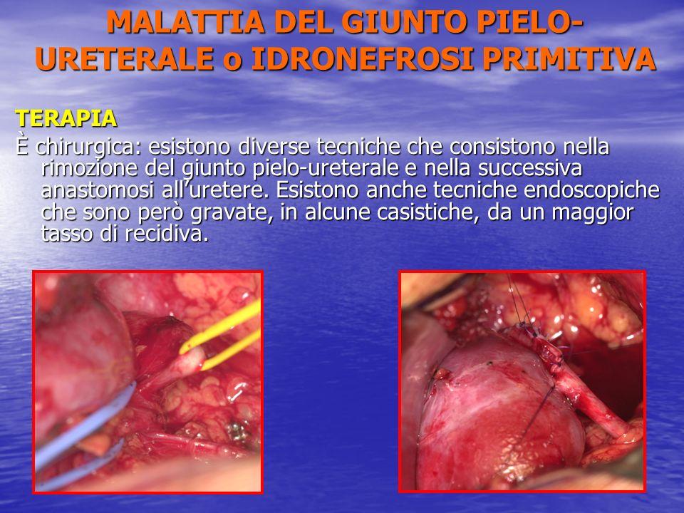 TERAPIA È chirurgica: esistono diverse tecniche che consistono nella rimozione del giunto pielo-ureterale e nella successiva anastomosi alluretere. Es