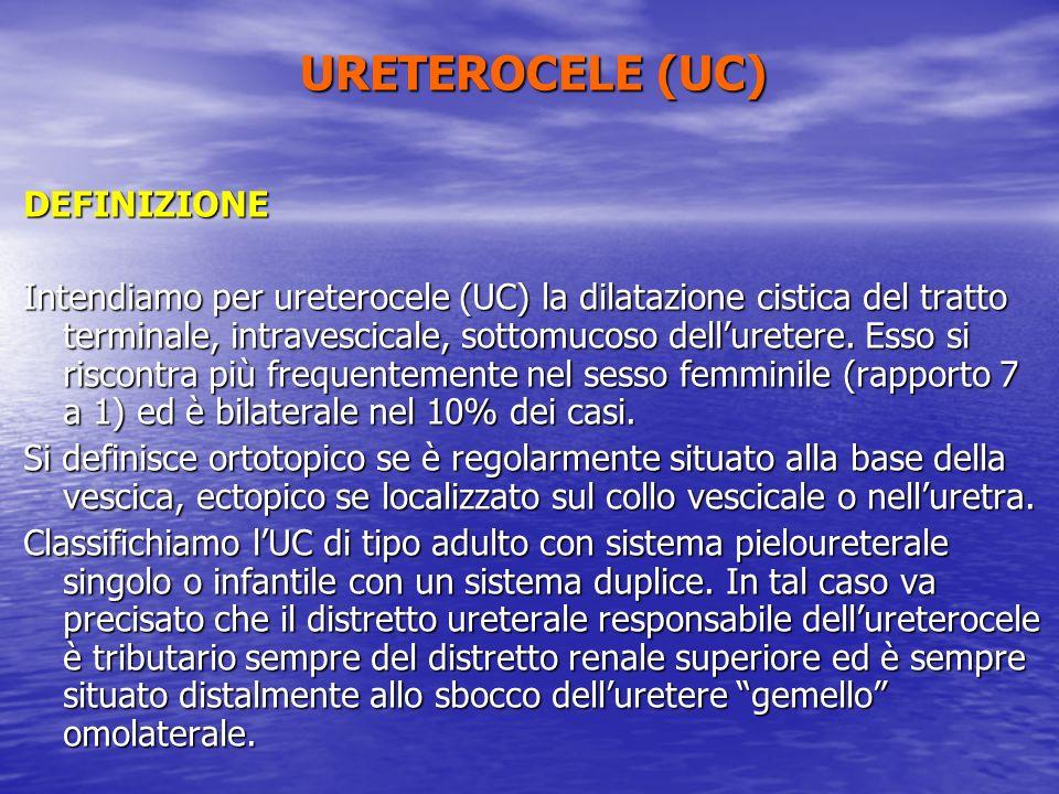 DEFINIZIONE Intendiamo per ureterocele (UC) la dilatazione cistica del tratto terminale, intravescicale, sottomucoso delluretere. Esso si riscontra pi