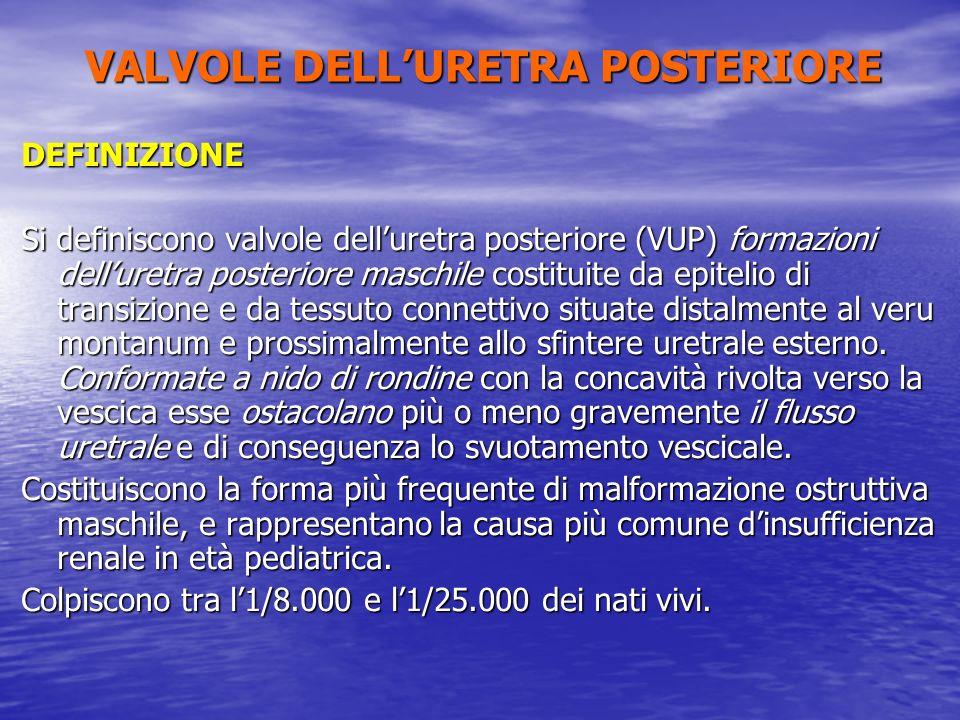 DEFINIZIONE Si definiscono valvole delluretra posteriore (VUP) formazioni delluretra posteriore maschile costituite da epitelio di transizione e da te