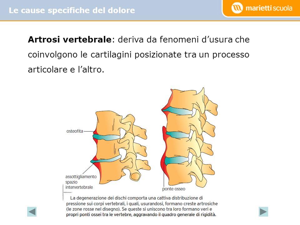 Le cause specifiche del dolore Artrosi vertebrale: deriva da fenomeni dusura che coinvolgono le cartilagini posizionate tra un processo articolare e l