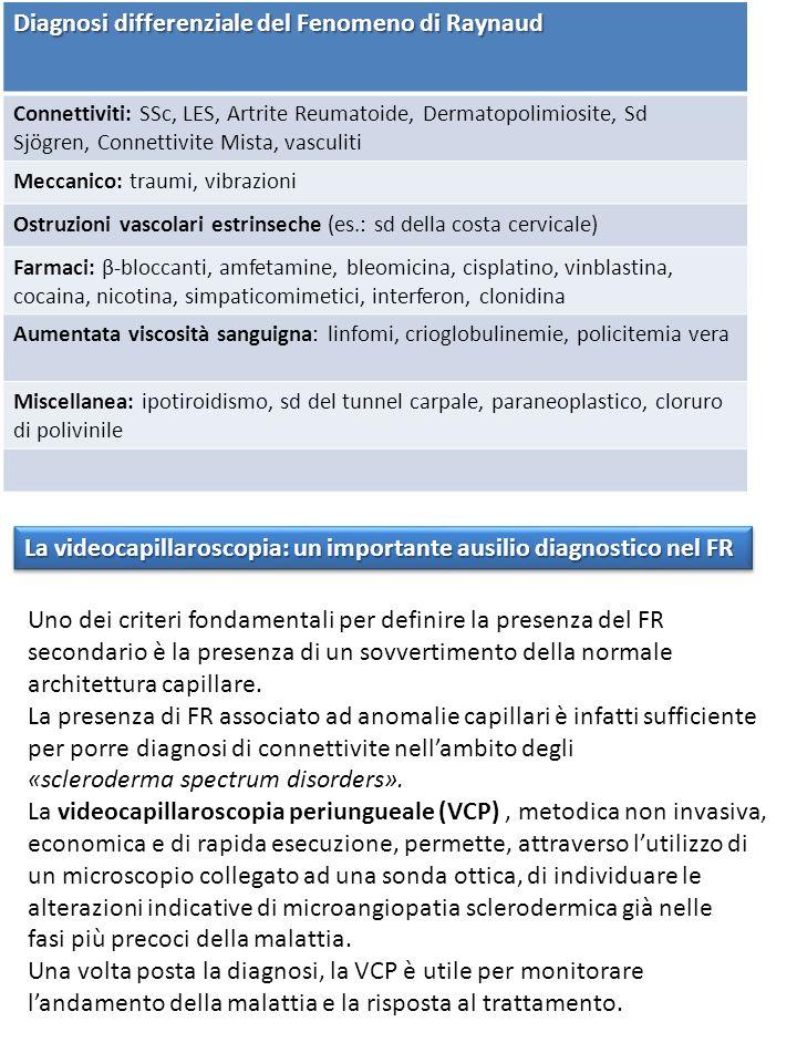 Diagnosi differenziale del Fenomeno di Raynaud Connettiviti: SSc, LES, Artrite Reumatoide, Dermatopolimiosite, Sd Sjögren, Connettivite Mista, vasculiti Meccanico: traumi, vibrazioni Ostruzioni vascolari estrinseche (es.: sd della costa cervicale) Farmaci: β-bloccanti, amfetamine, bleomicina, cisplatino, vinblastina, cocaina, nicotina, simpaticomimetici, interferon, clonidina Aumentata viscosità sanguigna: linfomi, crioglobulinemie, policitemia vera Miscellanea: ipotiroidismo, sd del tunnel carpale, paraneoplastico, cloruro di polivinile La videocapillaroscopia: un importante ausilio diagnostico nel FR Uno dei criteri fondamentali per definire la presenza del FR secondario è la presenza di un sovvertimento della normale architettura capillare.