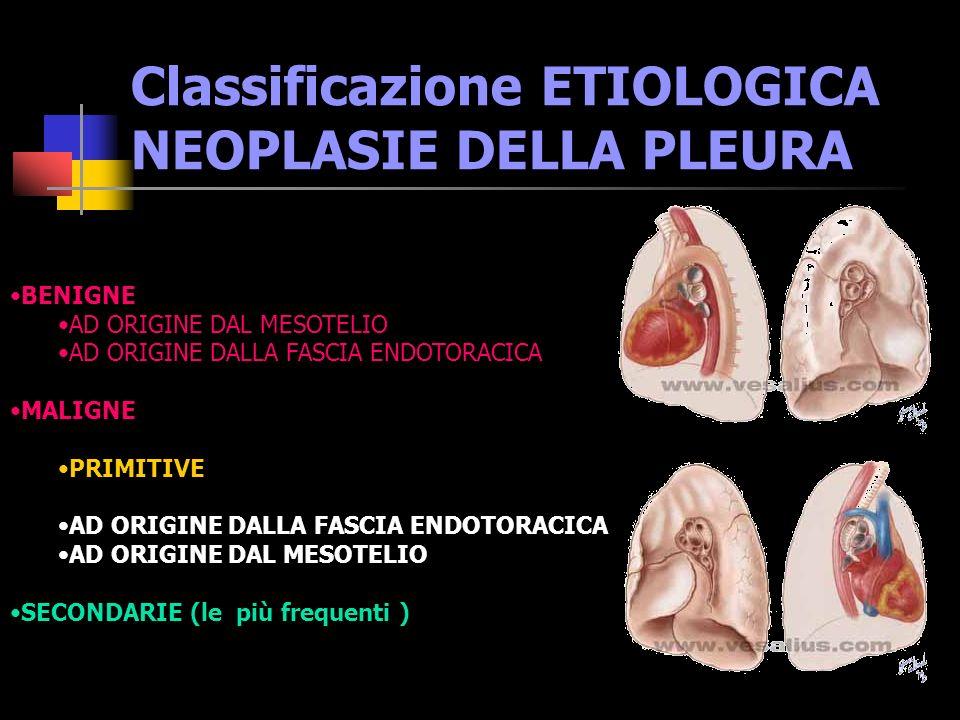 Ordine dei Medici della Provincia di Milano Corso sui MESOTELIOMI PLEURICI Epidemiologia / Diagnosi/ Terapia Dott.