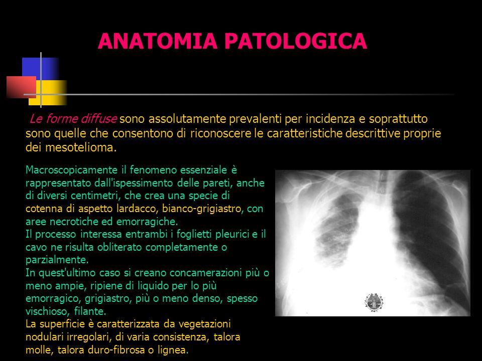 Qualunque sia il meccanismo patogenetico, l intervallo fra esposizione all asbesto e manifestazione dei mesotelioma, pur con grandi varianti, è molto lungo, mediamente di 20-30 anni.