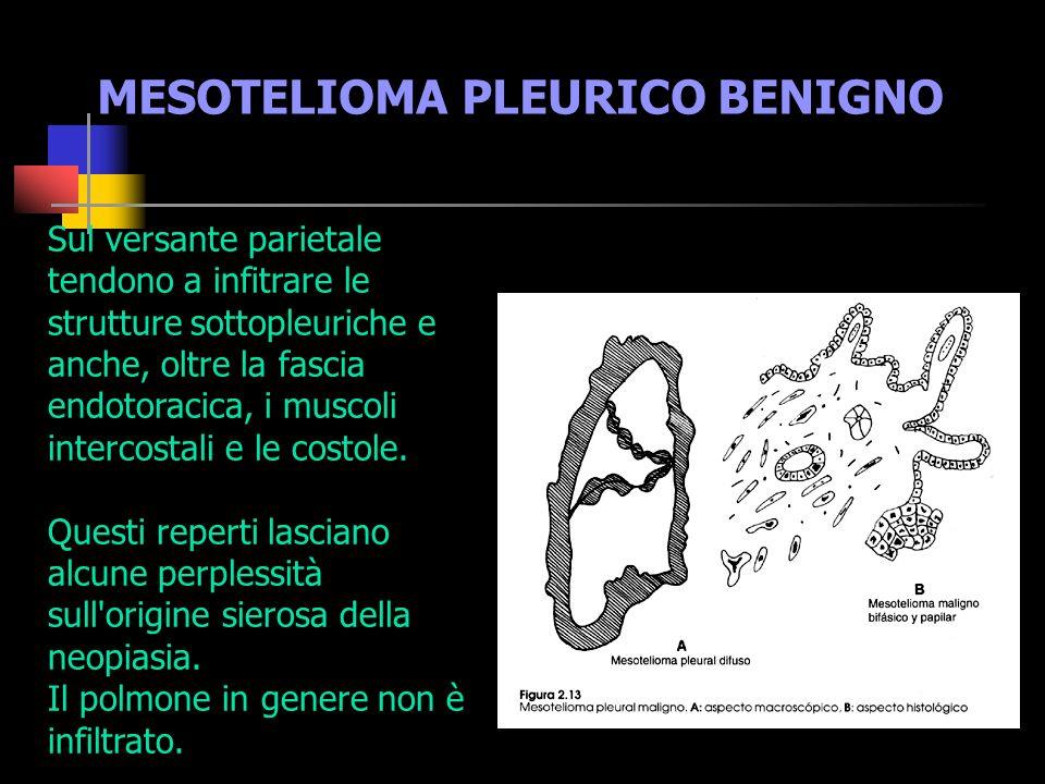 NEOPLASIE BENIGNE I mesoteliomi circoscritti devono essere considerati rari.