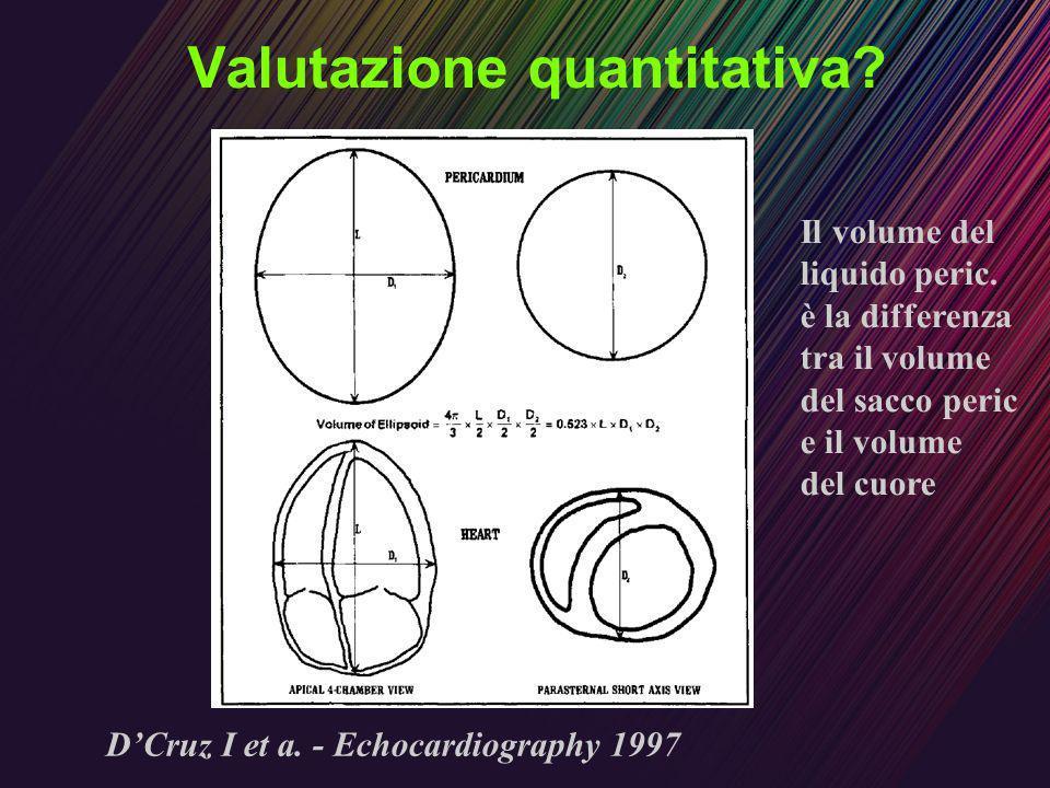 Valutazione quantitativa? DCruz I et a. - Echocardiography 1997 Il volume del liquido peric. è la differenza tra il volume del sacco peric e il volume