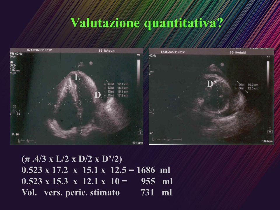Valutazione quantitativa? (π.4/3 x L/2 x D/2 x D/2) 0.523 x 17.2 x 15.1 x 12.5 = 1686 ml 0.523 x 15.3 x 12.1 x 10 = 955 ml Vol. vers. peric. stimato 7
