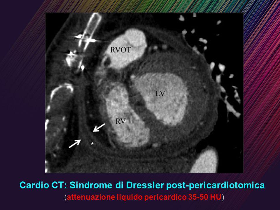 Cardio CT: Sindrome di Dressler post-pericardiotomica (attenuazione liquido pericardico 35-50 HU)