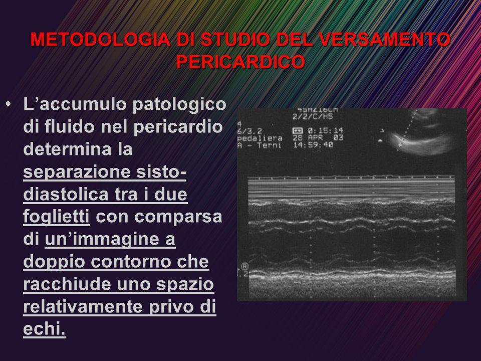 METODOLOGIA DI STUDIO DEL VERSAMENTO PERICARDICO Laccumulo patologico di fluido nel pericardio determina la separazione sisto- diastolica tra i due fo