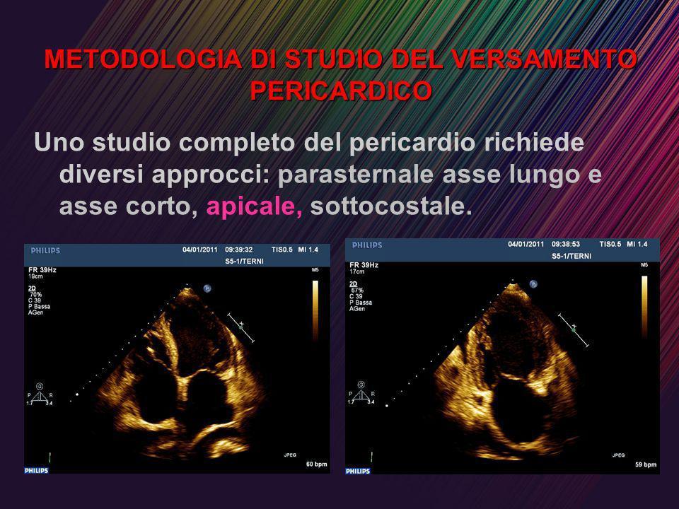 METODOLOGIA DI STUDIO DEL VERSAMENTO PERICARDICO Uno studio completo del pericardio richiede diversi approcci: parasternale asse lungo e asse corto, a