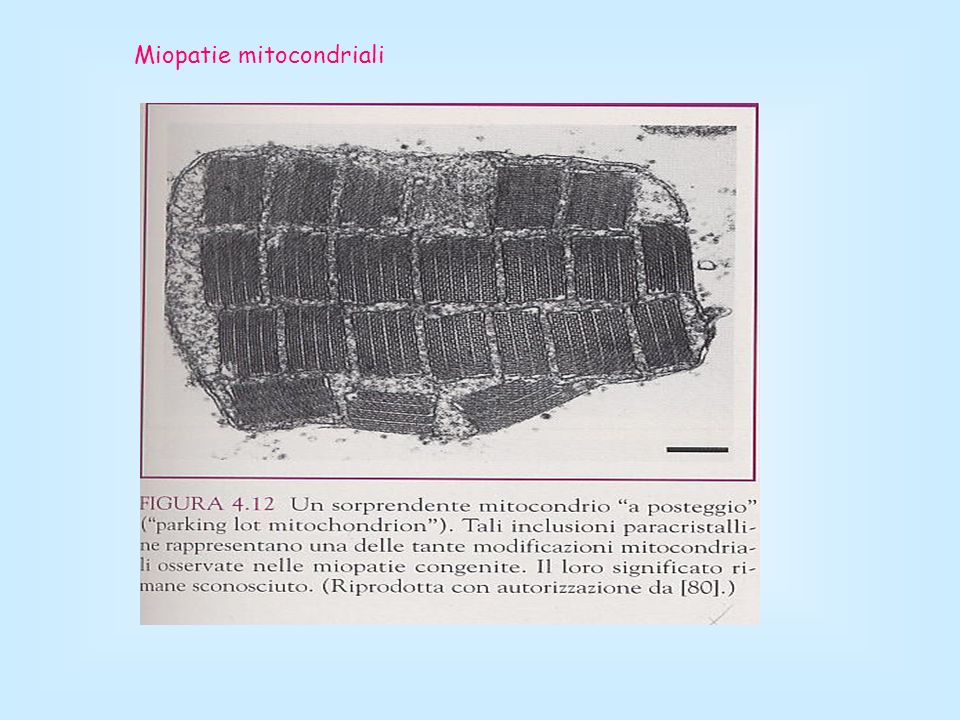 Miopatie mitocondriali