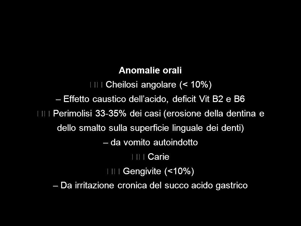 Anomalie orali Cheilosi angolare (< 10%) – Effetto caustico dellacido, deficit Vit B2 e B6 Perimolisi 33-35% dei casi (erosione della dentina e dello