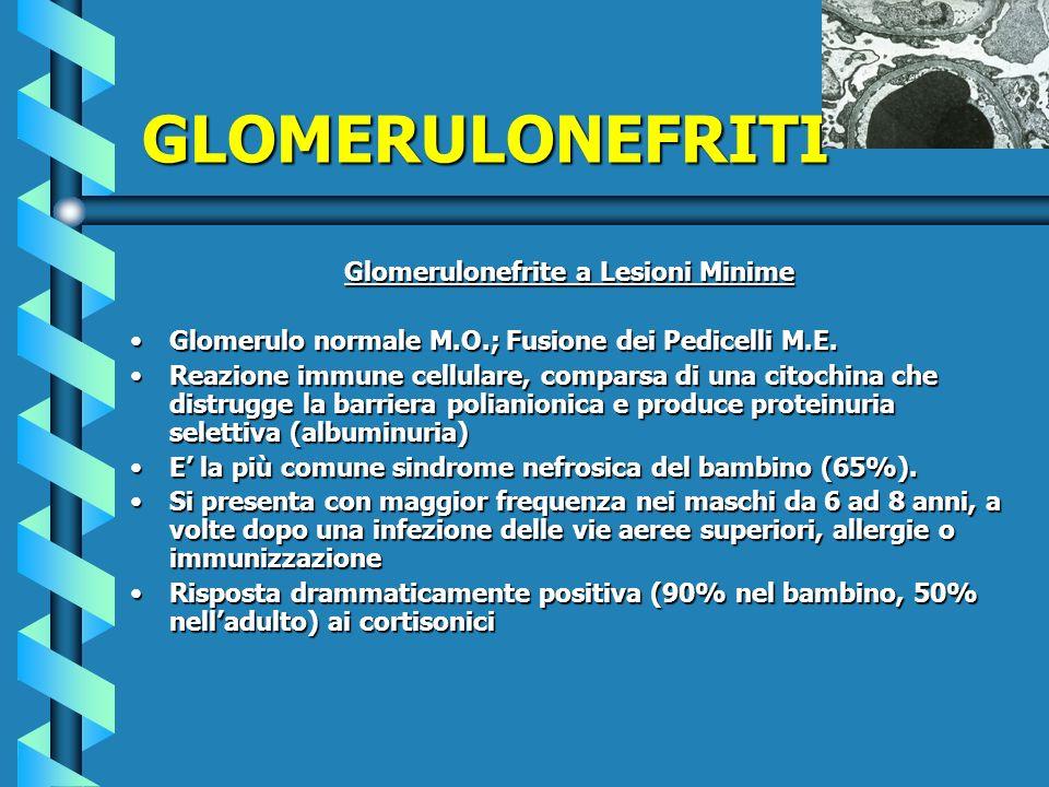 Glomerulonefrite a Lesioni Minime Glomerulo normale M.O.; Fusione dei Pedicelli M.E.Glomerulo normale M.O.; Fusione dei Pedicelli M.E. Reazione immune
