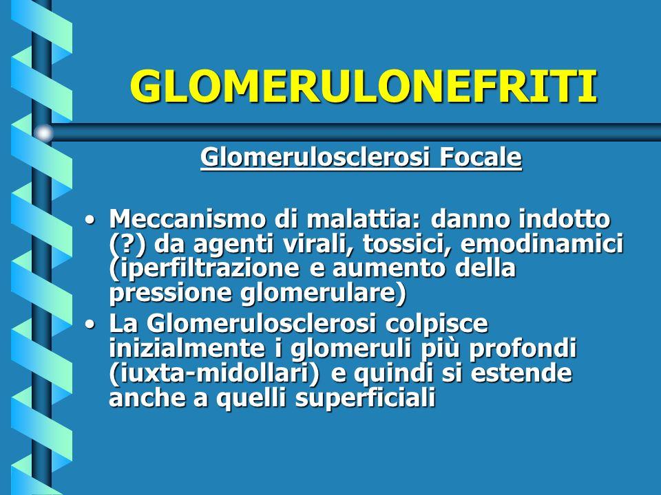 GLOMERULONEFRITI Glomerulosclerosi Focale Meccanismo di malattia: danno indotto (?) da agenti virali, tossici, emodinamici (iperfiltrazione e aumento