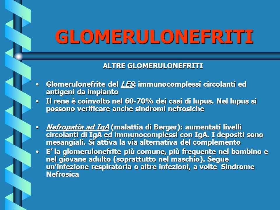 ALTRE GLOMERULONEFRITI Glomerulonefrite del LES: immunocomplessi circolanti ed antigeni da impiantoGlomerulonefrite del LES: immunocomplessi circolant
