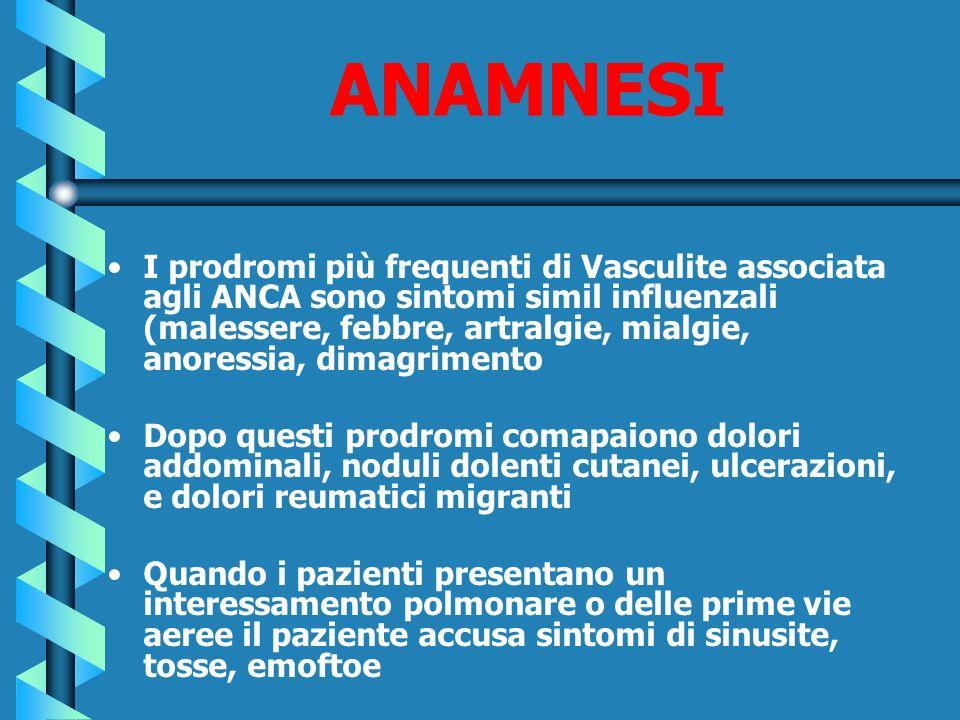 ANAMNESI I prodromi più frequenti di Vasculite associata agli ANCA sono sintomi simil influenzali (malessere, febbre, artralgie, mialgie, anoressia, d