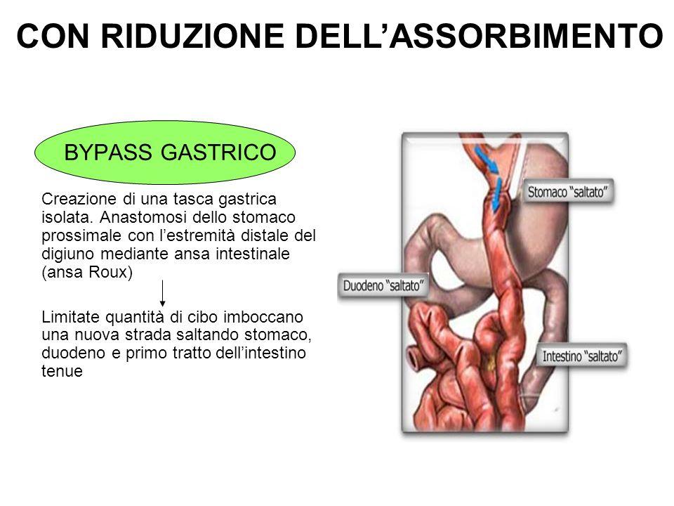 BYPASS GASTRICO Creazione di una tasca gastrica isolata. Anastomosi dello stomaco prossimale con lestremità distale del digiuno mediante ansa intestin