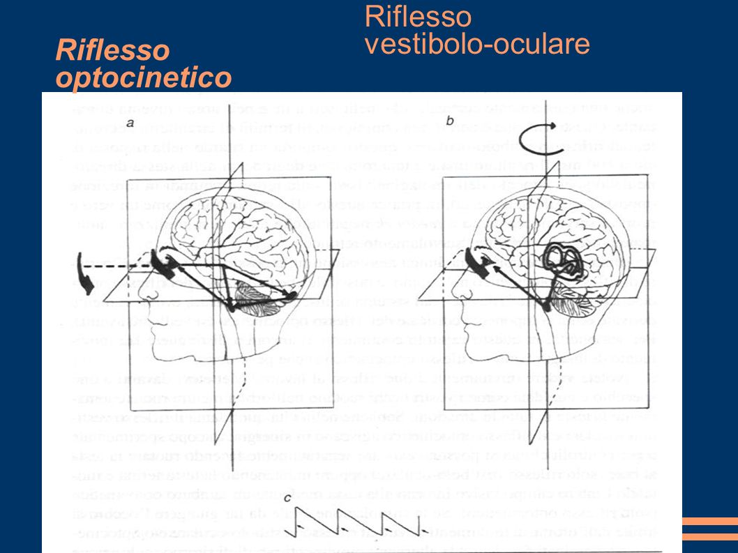 Riflesso optocinetico Riflesso vestibolo-oculare