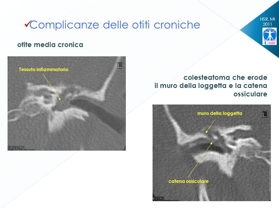 HSR, MI 2011 Complicanze delle otiti croniche otite media cronica colesteatoma che erode il muro della loggetta e la catena ossiculare muro della logg