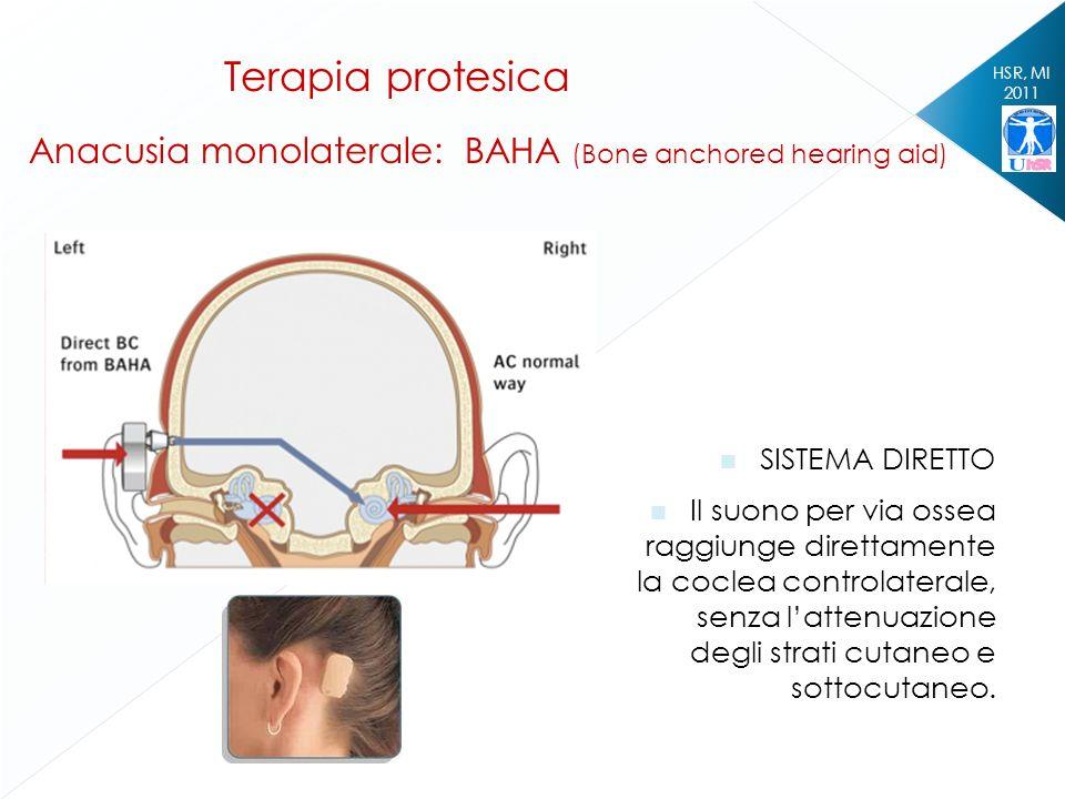 HSR, MI 2011 Terapia protesica Anacusia monolaterale: BAHA (Bone anchored hearing aid) SISTEMA DIRETTO Il suono per via ossea raggiunge direttamente l