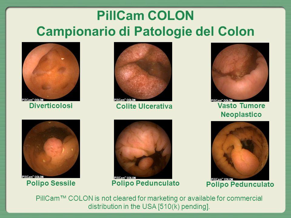 PillCam COLON Campionario di Patologie del Colon Diverticolosi Colite Ulcerativa Vasto Tumore Neoplastico Polipo SessilePolipo Pedunculato PillCam COL