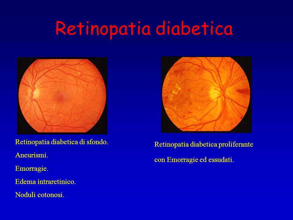 Retinopatia diabetica Retinopatia diabetica di sfondo. Aneurismi. Emorragie. Edema intraretinico. Noduli cotonosi. Retinopatia diabetica proliferante
