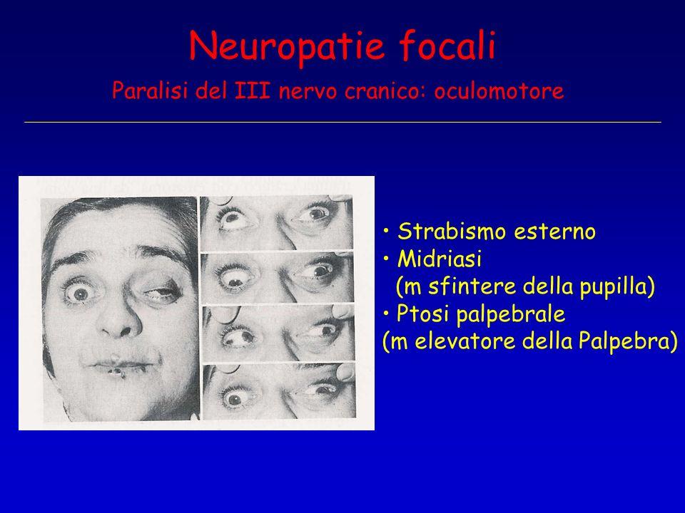 Neuropatie focali Paralisi del III nervo cranico: oculomotore Strabismo esterno Midriasi (m sfintere della pupilla) Ptosi palpebrale (m elevatore dell