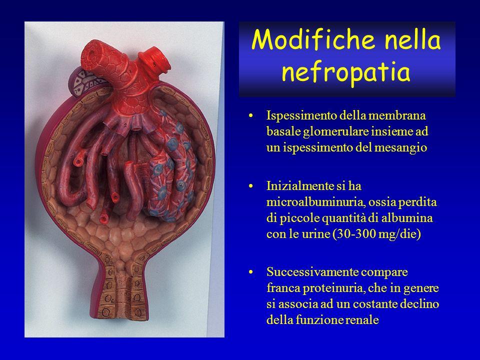 Modifiche nella nefropatia Ispessimento della membrana basale glomerulare insieme ad un ispessimento del mesangio Inizialmente si ha microalbuminuria,