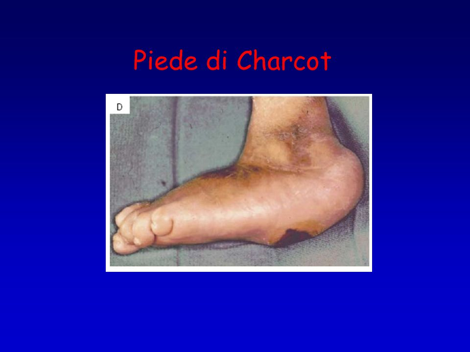 Piede di Charcot