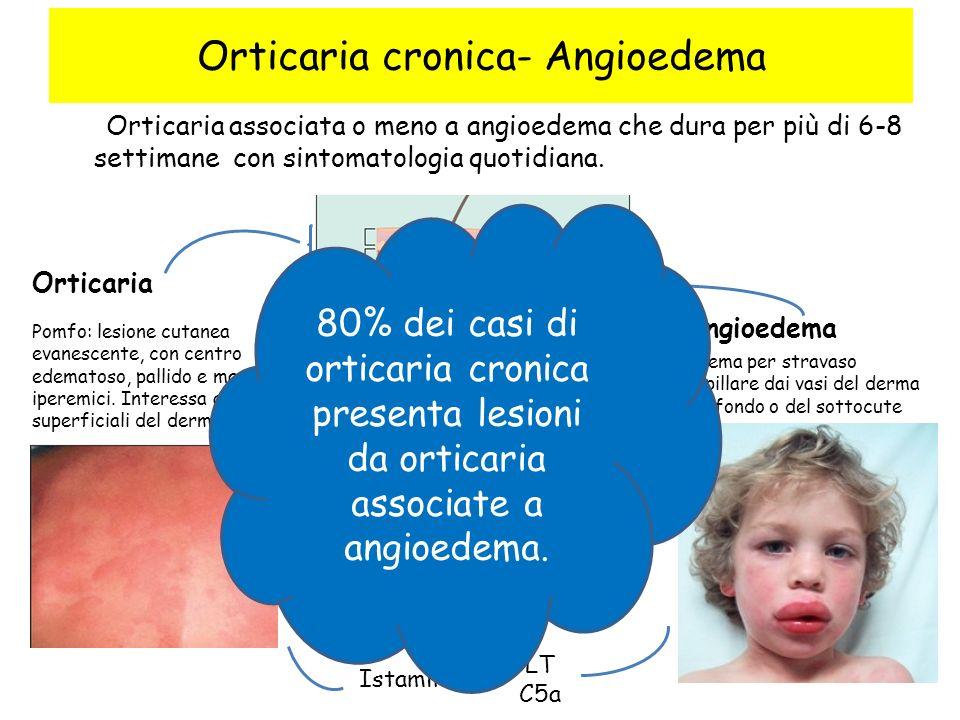 Orticaria associata o meno a angioedema che dura per più di 6-8 settimane con sintomatologia quotidiana. Orticaria Angioedema Pomfo: lesione cutanea e