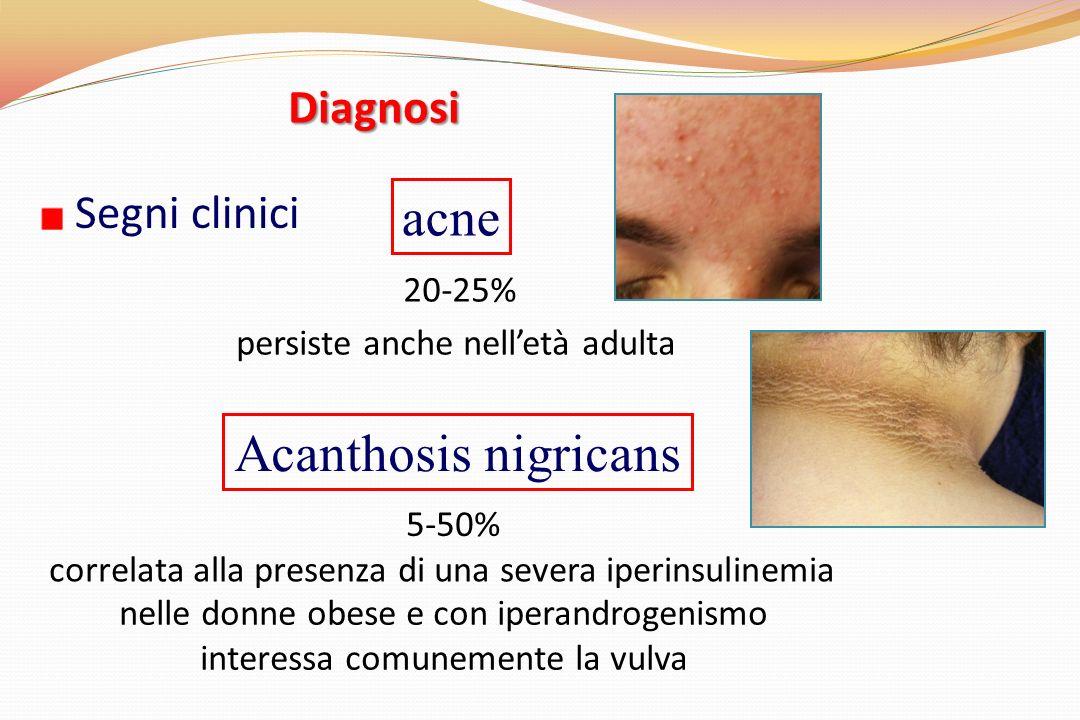 Segni clinici Diagnosi acne 20-25% persiste anche nelletà adulta Acanthosis nigricans 5-50% correlata alla presenza di una severa iperinsulinemia nelle donne obese e con iperandrogenismo interessa comunemente la vulva