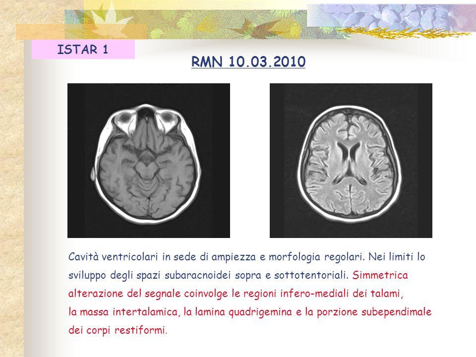 Cavità ventricolari in sede di ampiezza e morfologia regolari. Nei limiti lo sviluppo degli spazi subaracnoidei sopra e sottotentoriali. Simmetrica al