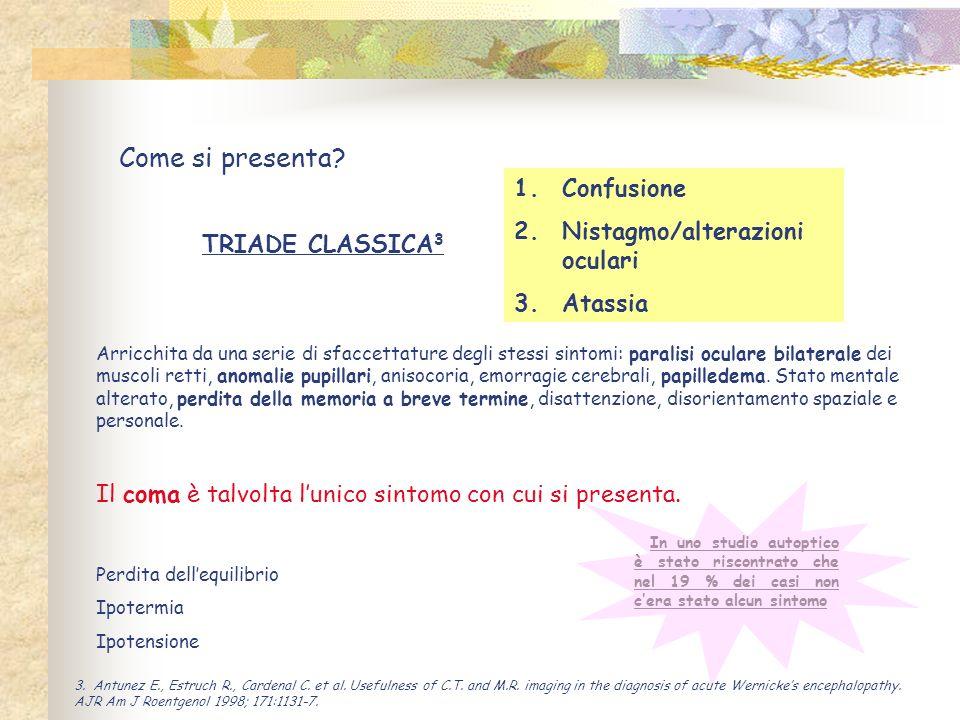 Come si presenta? TRIADE CLASSICA 3 1.Confusione 2.Nistagmo/alterazioni oculari 3.Atassia Arricchita da una serie di sfaccettature degli stessi sintom