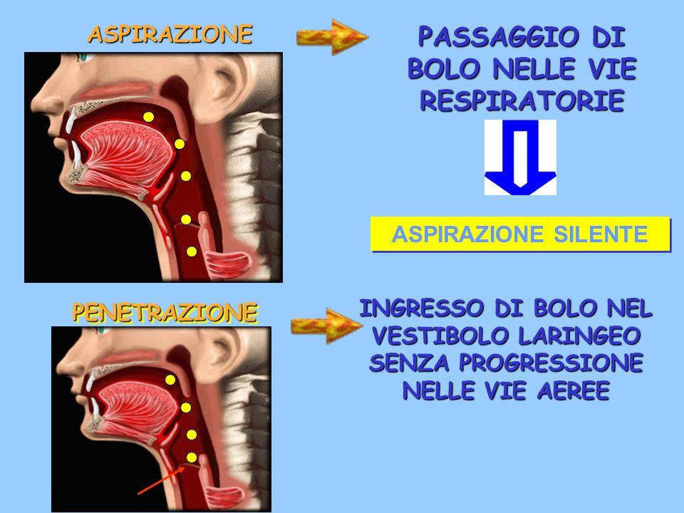 ASPIRAZIONE PASSAGGIO DI BOLO NELLE VIE RESPIRATORIE PENETRAZIONEPENETRAZIONE INGRESSO DI BOLO NEL VESTIBOLO LARINGEO SENZA PROGRESSIONE NELLE VIE AER
