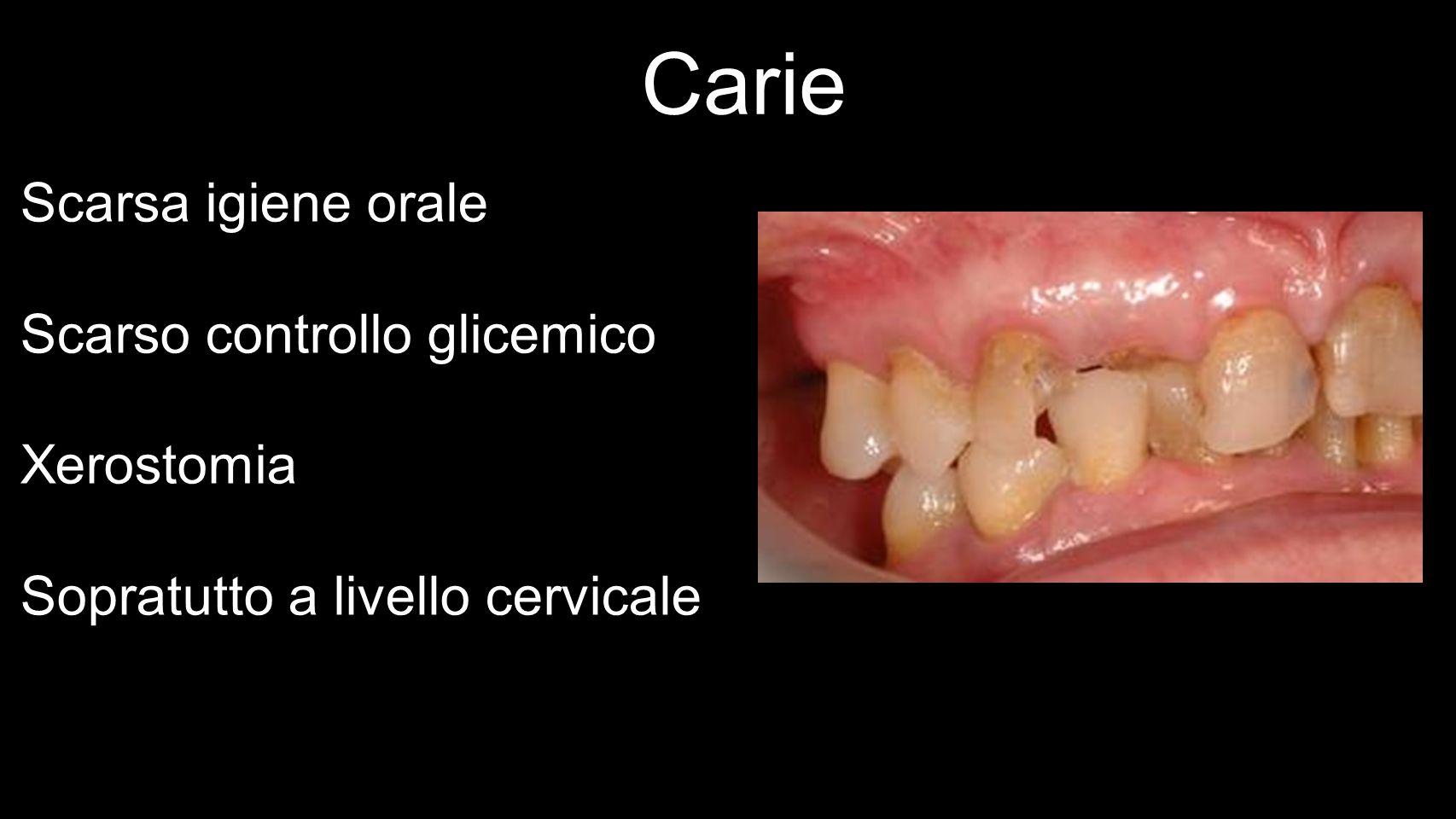 Carie Scarsa igiene orale Scarso controllo glicemico Xerostomia Sopratutto a livello cervicale