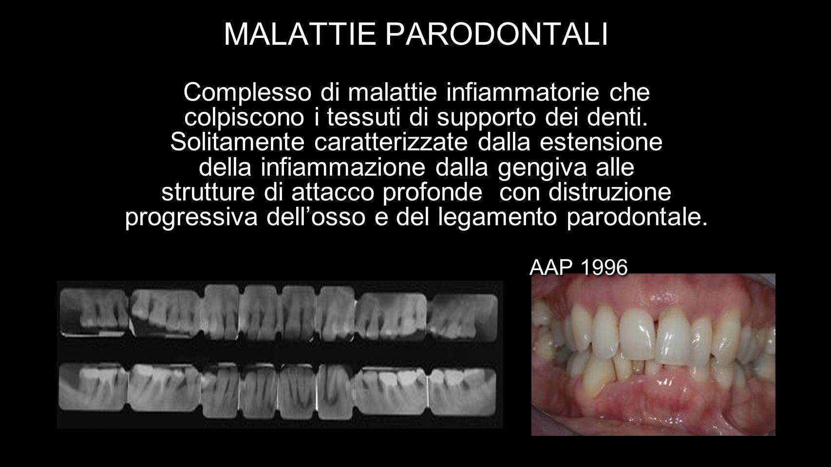 MALATTIE PARODONTALI Complesso di malattie infiammatorie che colpiscono i tessuti di supporto dei denti. Solitamente caratterizzate dalla estensione d