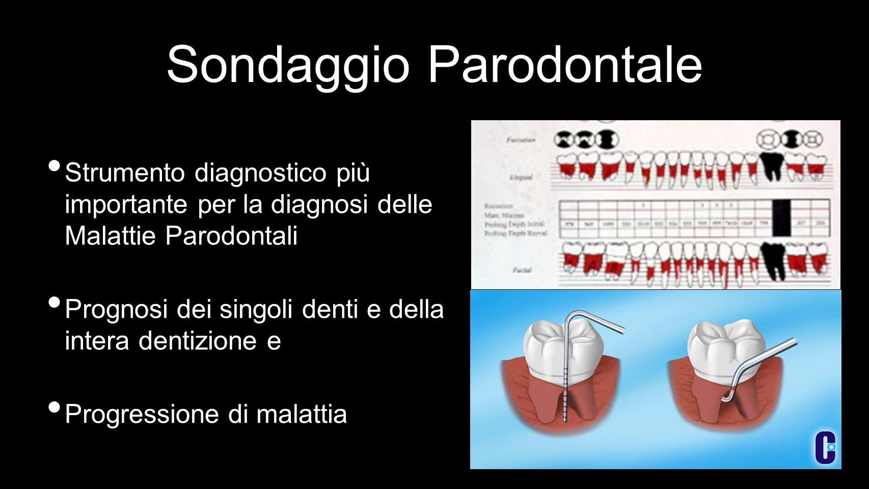 Sondaggio Parodontale Strumento diagnostico più importante per la diagnosi delle Malattie Parodontali Prognosi dei singoli denti e della intera dentizione e Progressione di malattia
