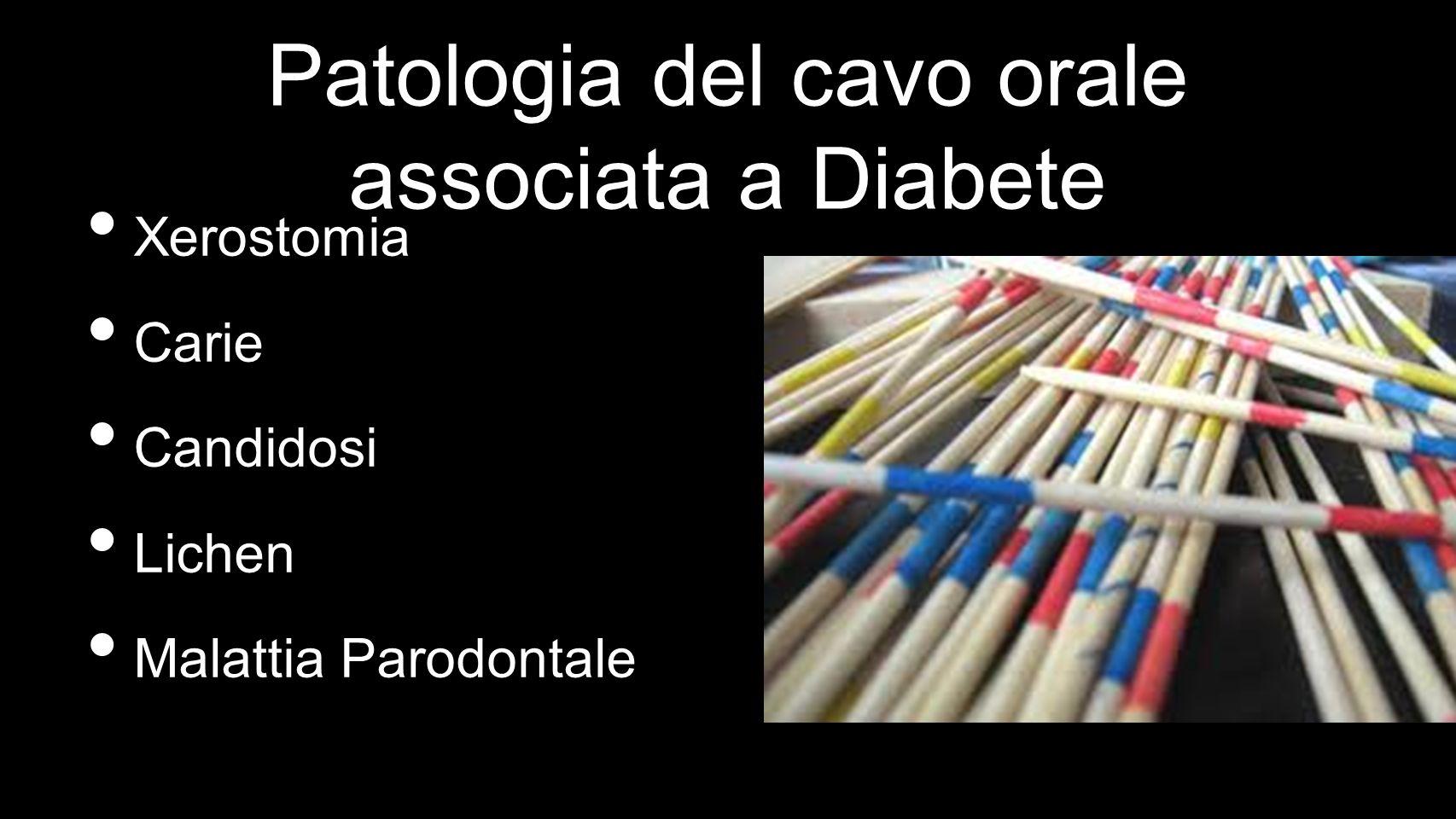 Xerostomia Carie Candidosi Lichen Malattia Parodontale Patologia del cavo orale associata a Diabete