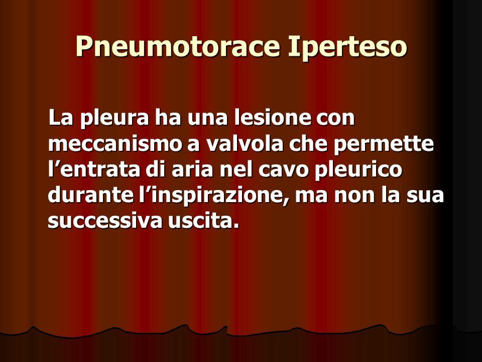 Pneumotorace Iperteso La pleura ha una lesione con meccanismo a valvola che permette lentrata di aria nel cavo pleurico durante linspirazione, ma non la sua successiva uscita.