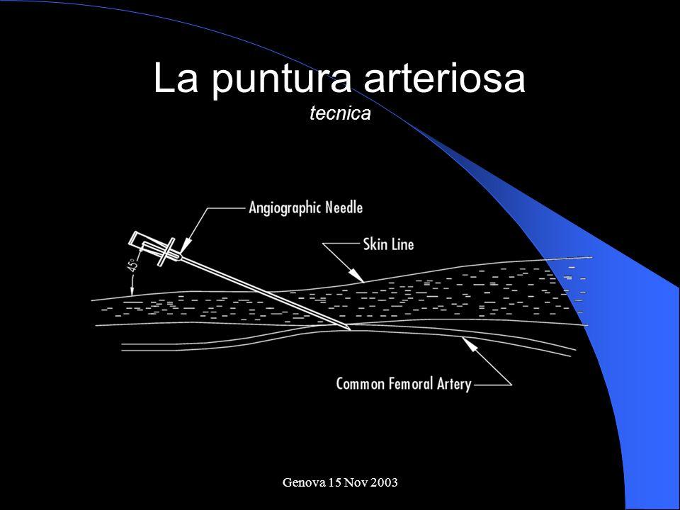 Genova 15 Nov 2003 La puntura arteriosa tecnica