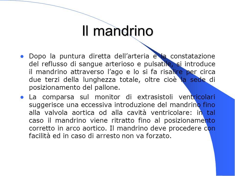 Genova 15 Nov 2003 Il mandrino Dopo la puntura diretta dellarteria e la constatazione del reflusso di sangue arterioso e pulsatile, si introduce il ma